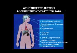 bolezn-vilsona-konovalova